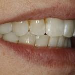 Nach der Zahnkorrektur mit Lingualtechnik