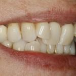 Rechte Seite vor der Zahnkorrektur mit Lingualtechnik