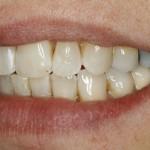 Linke Seite nach Zahnspange für Erwachsene - Lingualtechnik