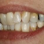 Lippenbild vor Zahnspange für Erwachsene mit Lingualtechnik
