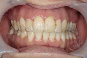 Endlich gerade Zähne - nach Abschluss der ästhetischen Zahnkorrektur