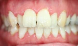 Vor der Zahnspange für Erwachsene