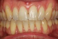 Nach-Erwachsenen-Zahnspange2