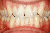 Vor Erwachsenen-Zahnspange 1