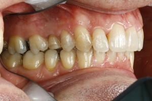 Seitenansicht nach der 6-Monats-Zahnspange mit unveränderter Rückbisslage