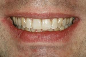 Attraktiveres Lächeln nach der ästhetischen Zahnkorrektur trotz Rückbisslage