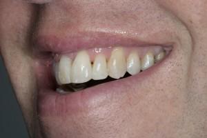 Obwohl die Vorbisslage unverändert ist, wirkt das Lächeln mit geraden Zähnen viel anziehender
