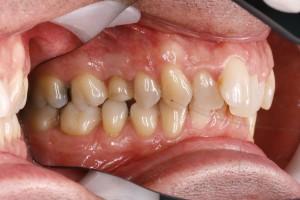 Schiefe Zähne vor der Zahnkorrektur bei Rückbisslage