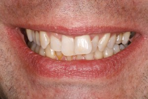 Lächeln vor der Zahnspange in 6 Monaten bei Rückbisslage